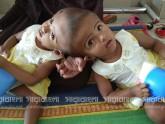 রাবেয়া-রোকাইয়ার বিষয়টি জটিল জেনেই এগুচ্ছি: মেডিকেল বোর্ড