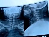 গলার ভেতর দশটি সুঁচ, জটিল অপারেশনে উদ্ধার
