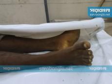 রাজবাড়ীতে 'বন্দুকযুদ্ধে' পুলিশ হত্যা মামলার আসামি নিহত